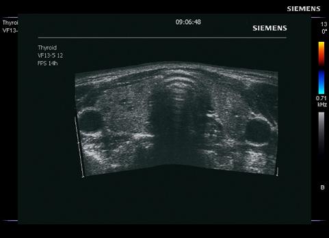 pret analize tiroida
